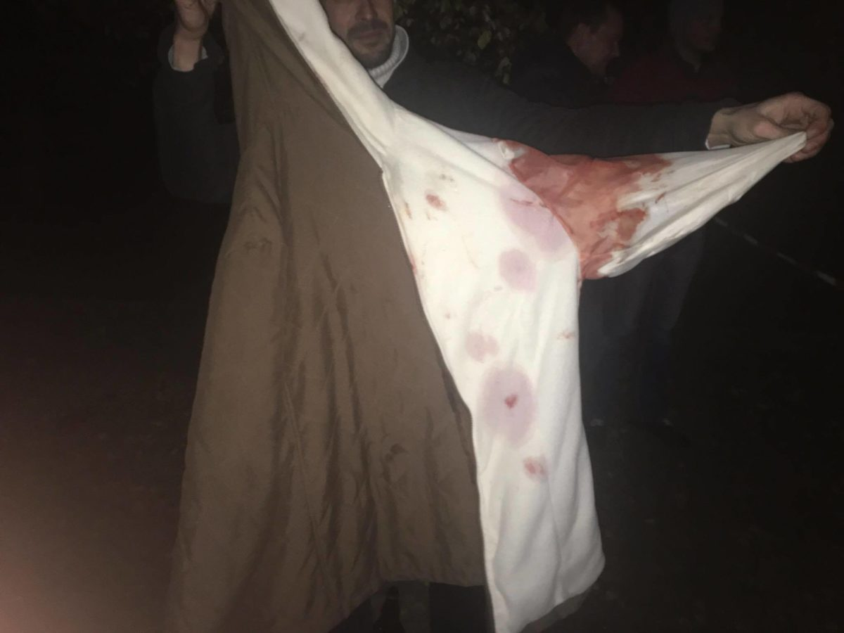 Прохожий подложил свою куртку под голову одному из пострадавших