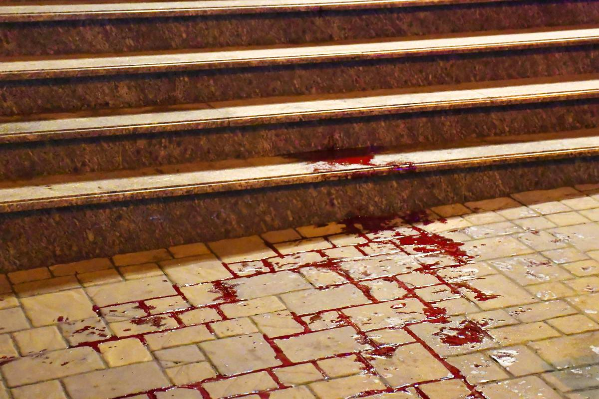 Пострадавший получил ножевые ранения