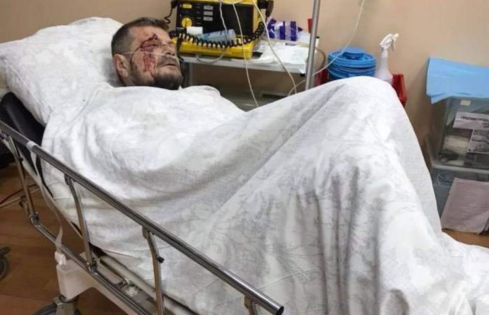 Во время взрыва депутат Игорь Мосийчук получил осколочные ранения