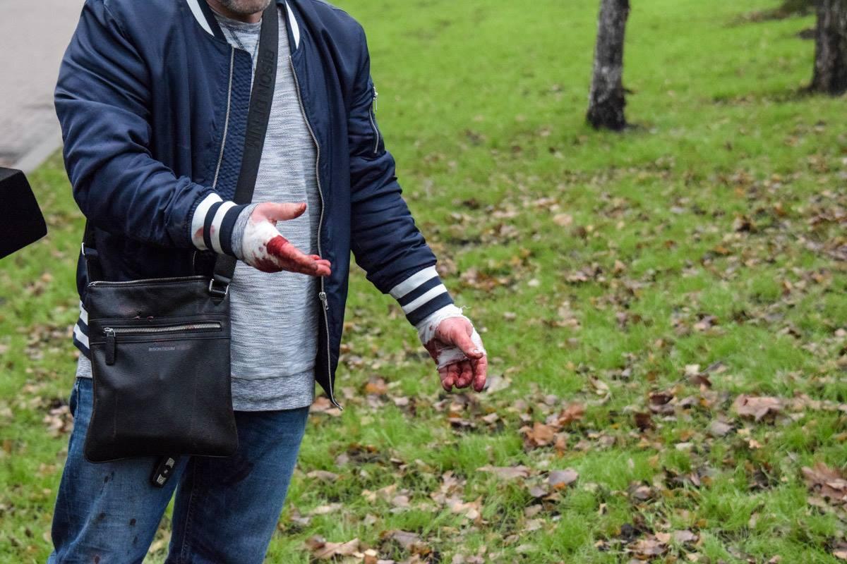 Из-за столкновения у водителя BMW руки в крови