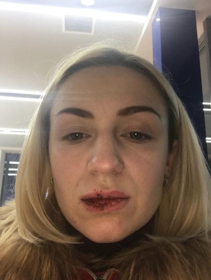 Пассажирка Елена, которую водитель такси ударил по лицу