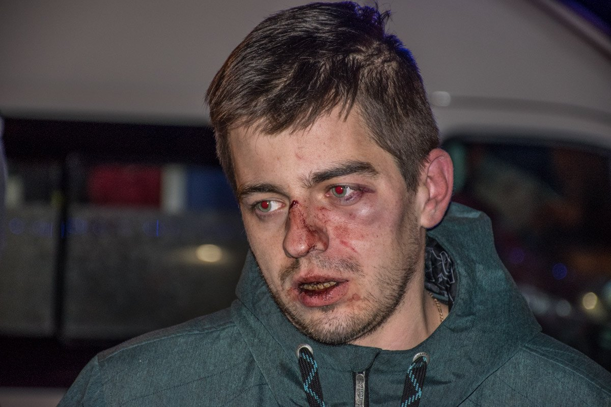 У пострадавшего разбито лицо