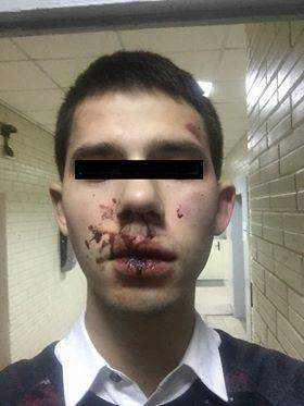 ВВ результате инцидента у парня разбито лицо, травмирован палец и подвернута нога