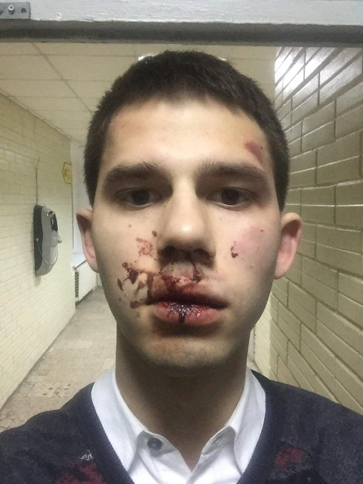 Избитый кавказцами киевлянин Ярослав