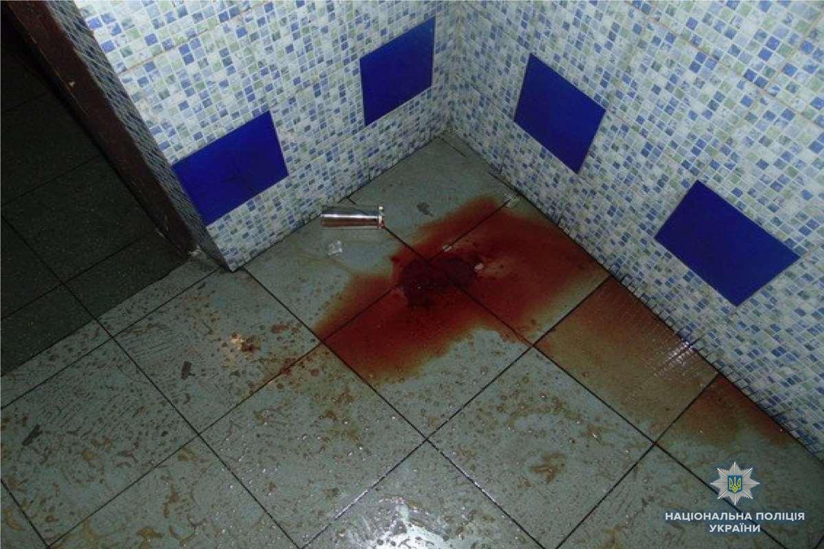 Мужчина лежал в луже крови