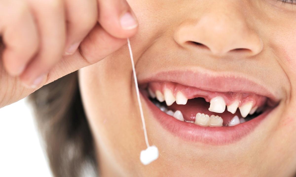 А к тому, кто не следит за чистотой своих зубов, приходит стоматолог и вырывает зубки