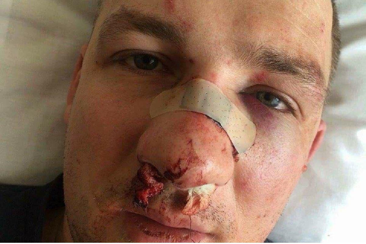 Народного депутата Украины Юрия Левченко избили во время демонтажа МАФов