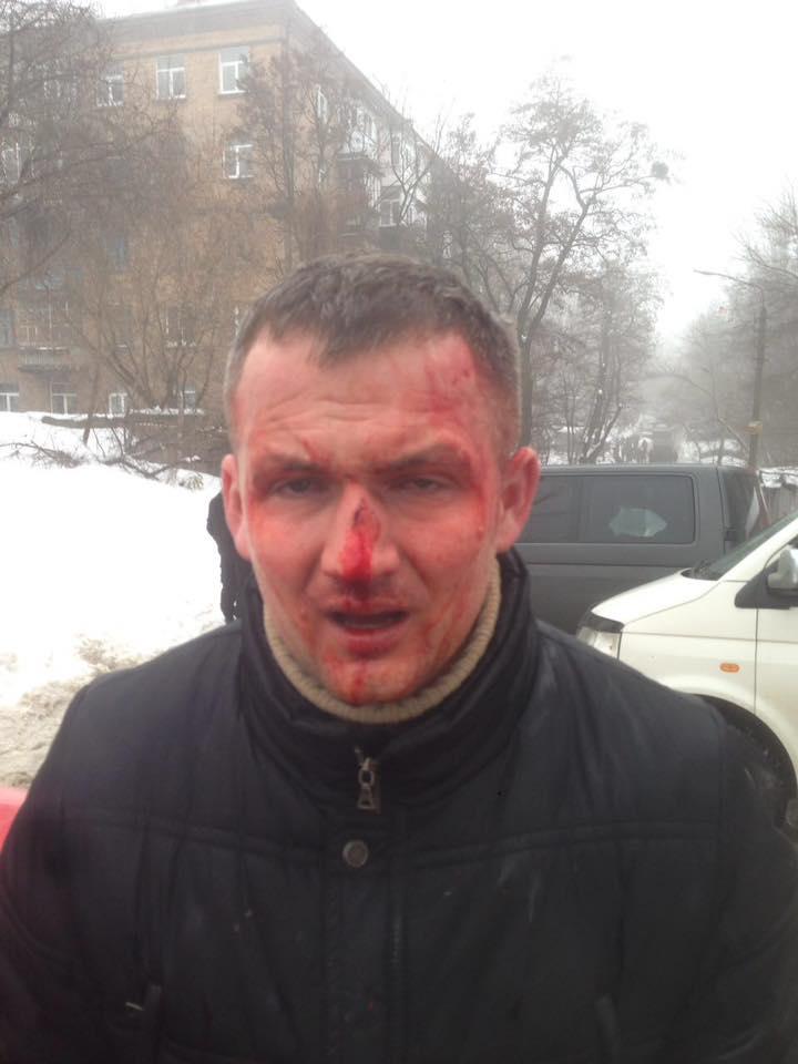 Избитый Народный депутат Юрий Левченко