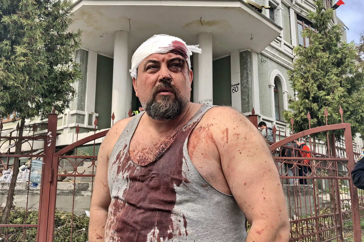 Пострадавший мужчина - переселенец из Крыма, житель общежития