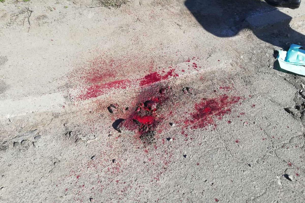 Пассажир получил обширную скальпированную рану головы и сотрясение мозга