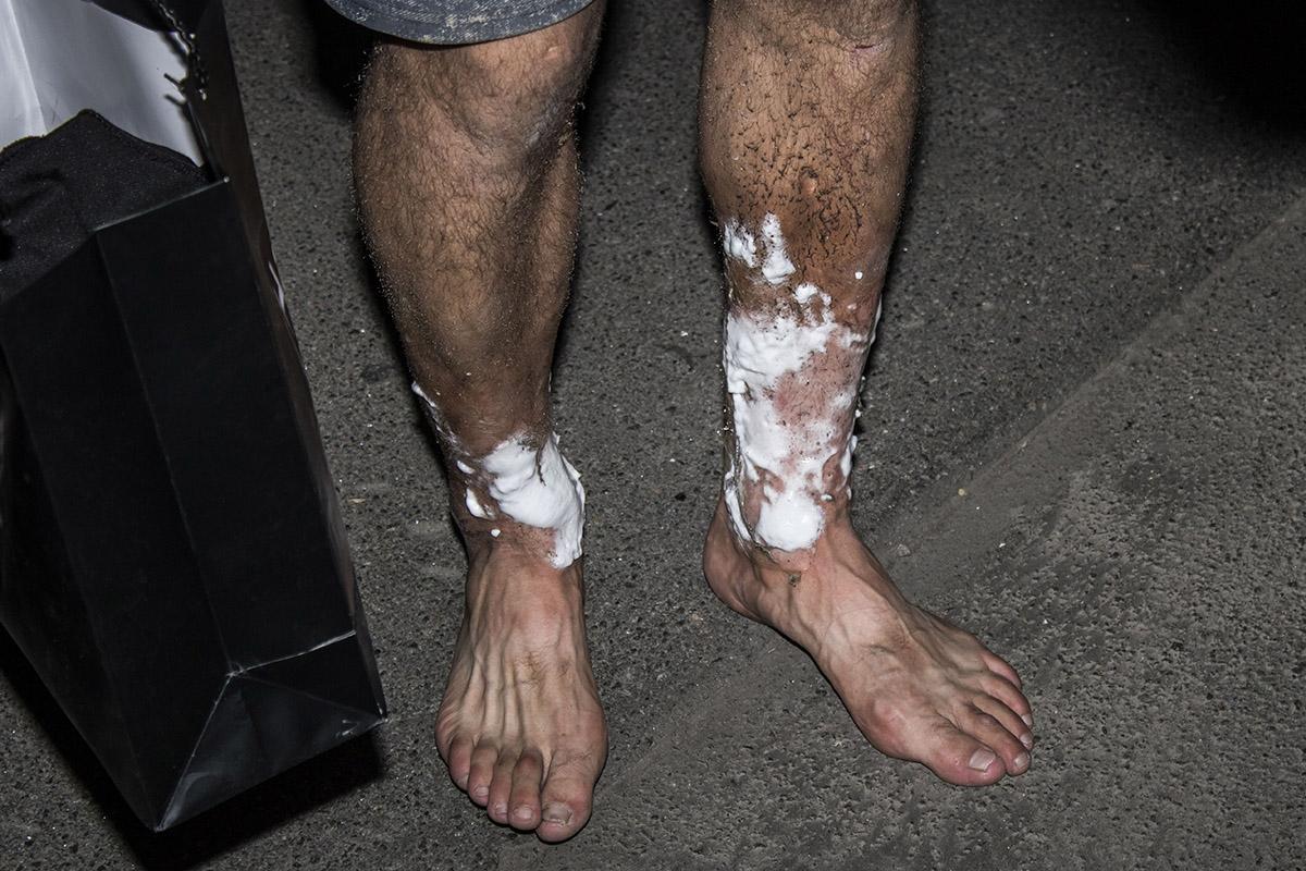 Мужчина, который тушил пожар, получил ожоги ног