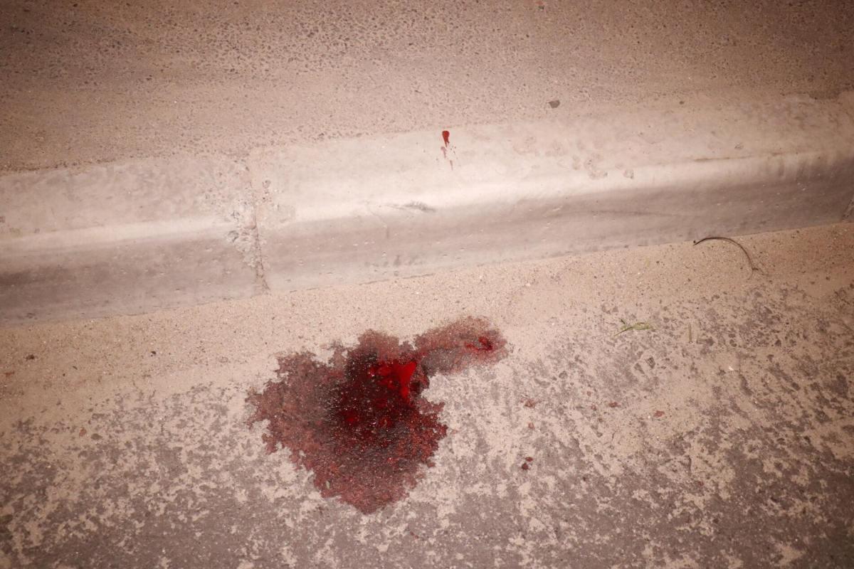 Люди увидели на проезжей части женщину с велосипедом в луже крови