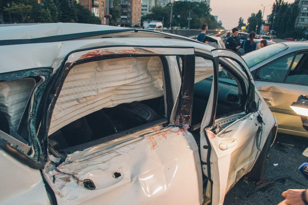 Сильно пострадала пассажир Mercedes. Ее госпитализировали