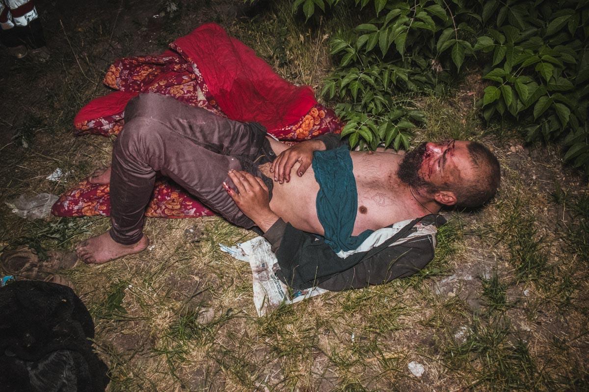 На улице Академика Евремова двое мужчин избили человека