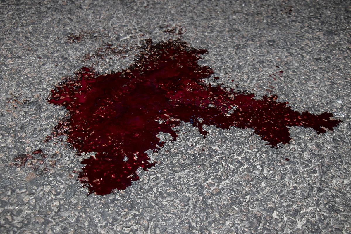 У потерпевшей травмы руки и ног, на месте где случилась авария лужа крови