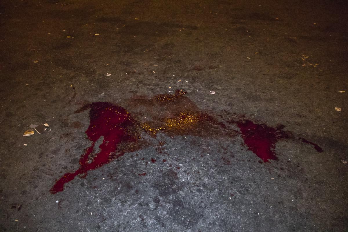Они выстрелили в одного из пневматического оружия и разбили ему лицо, а потом били его ногами по голове