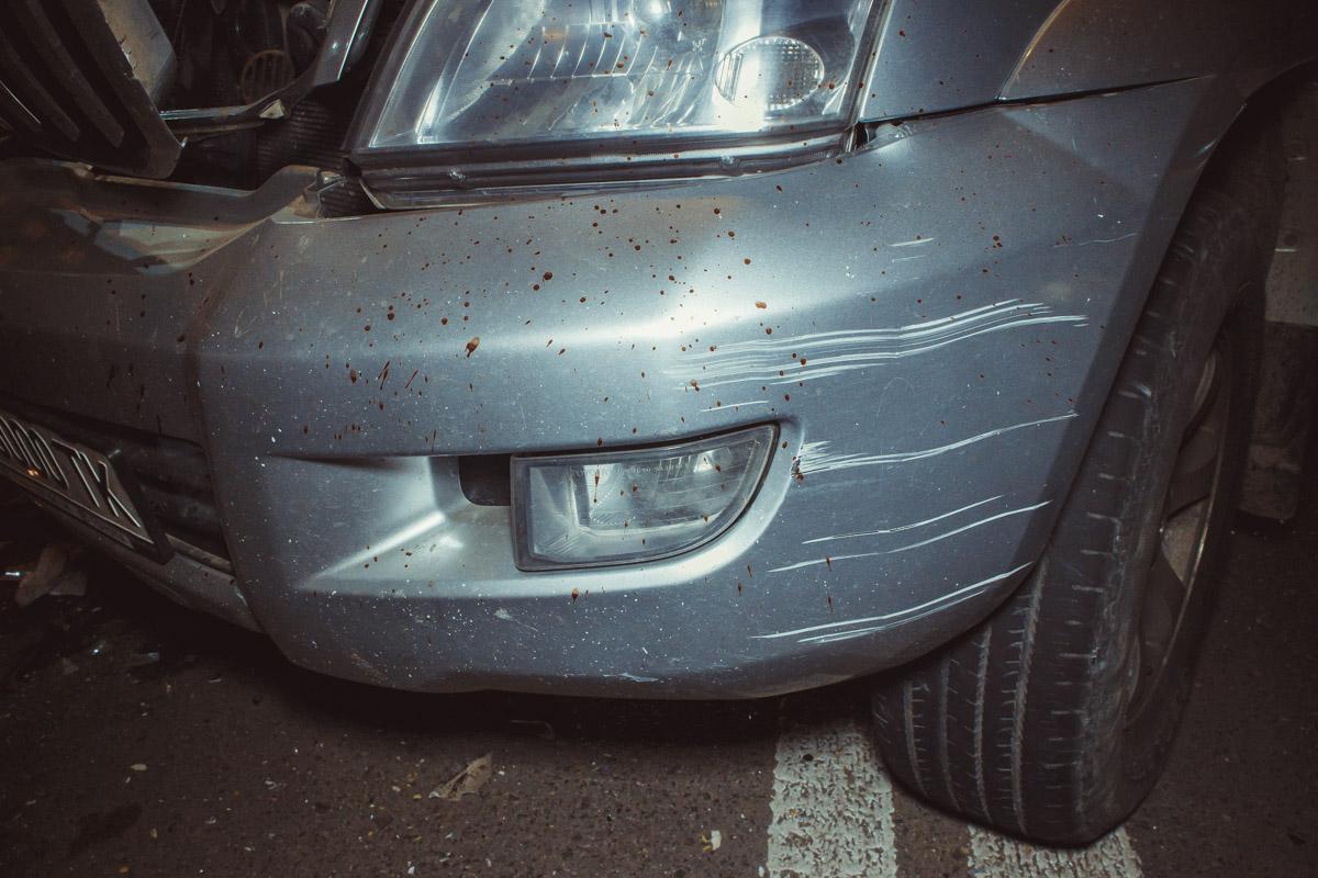 Владелец Toyota поранил руку от удара