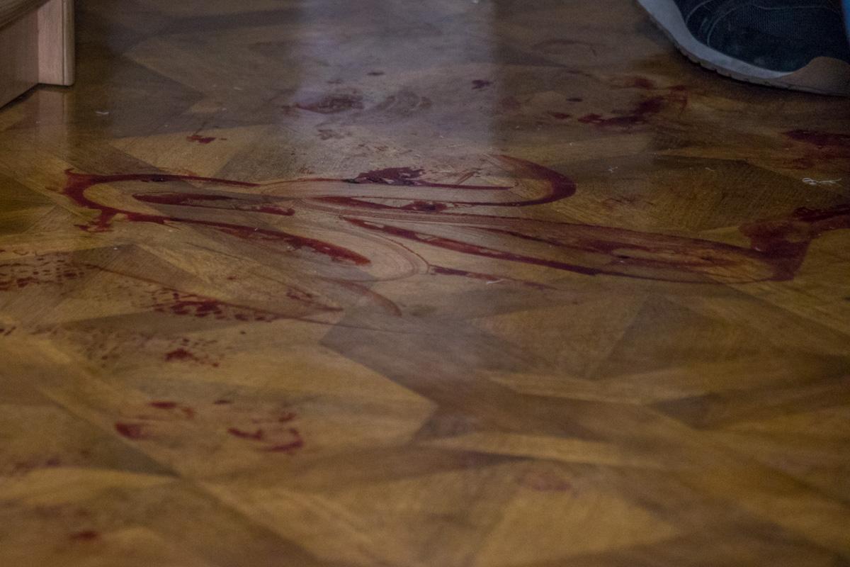 Отца Мазура госпитализировали в больницу с ранениями ног и потерей крови