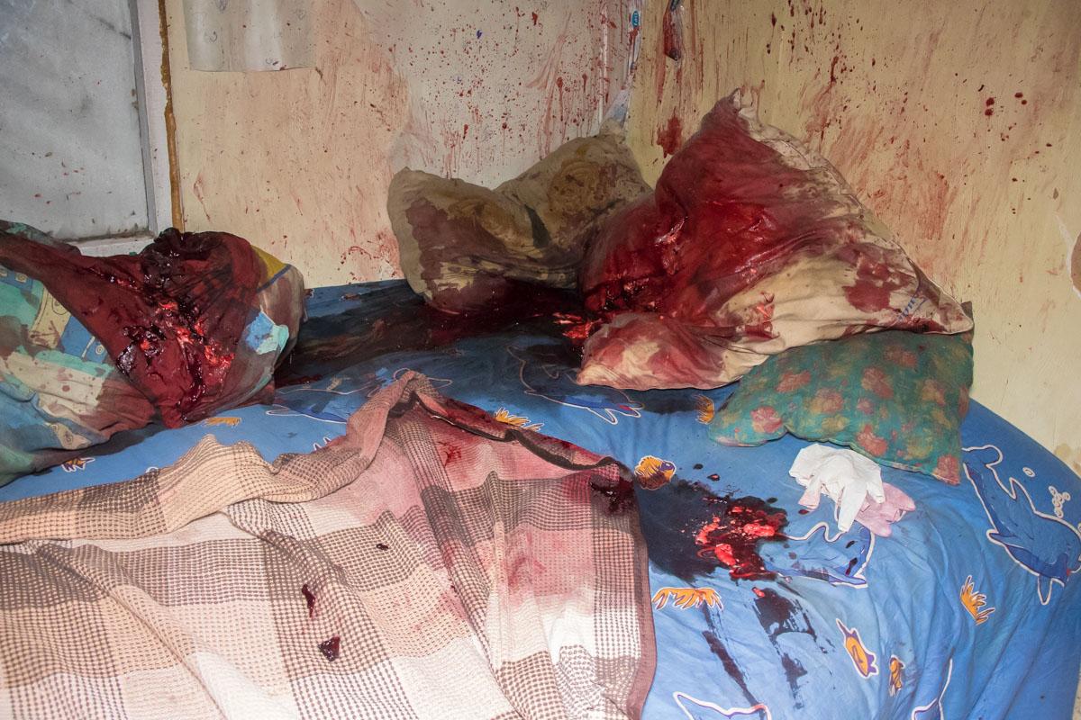 Во сне на мужчину напали и нанеслимножество ударов молотком по голове