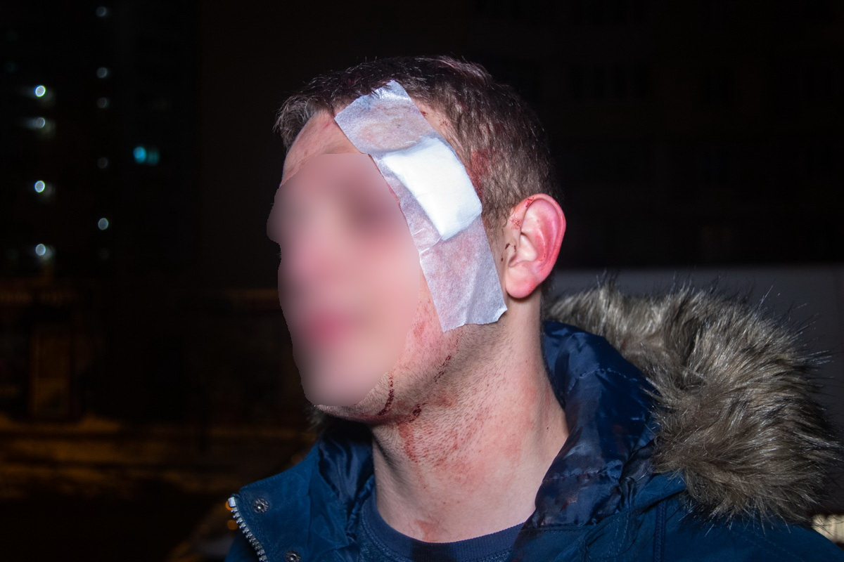 В результате потасовки несколько человек получили травмы