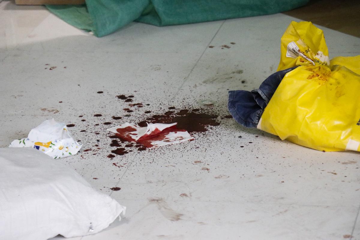 Граната взорвалась в руках у рабочего и повредила ему кисть