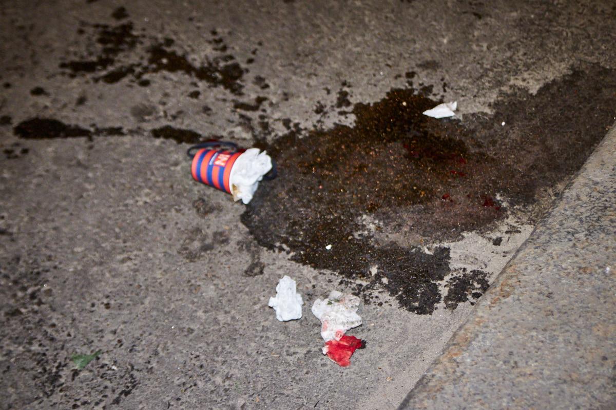 В результате мото ДТП на Дорогожичах пострадал парень 1998 года рождения