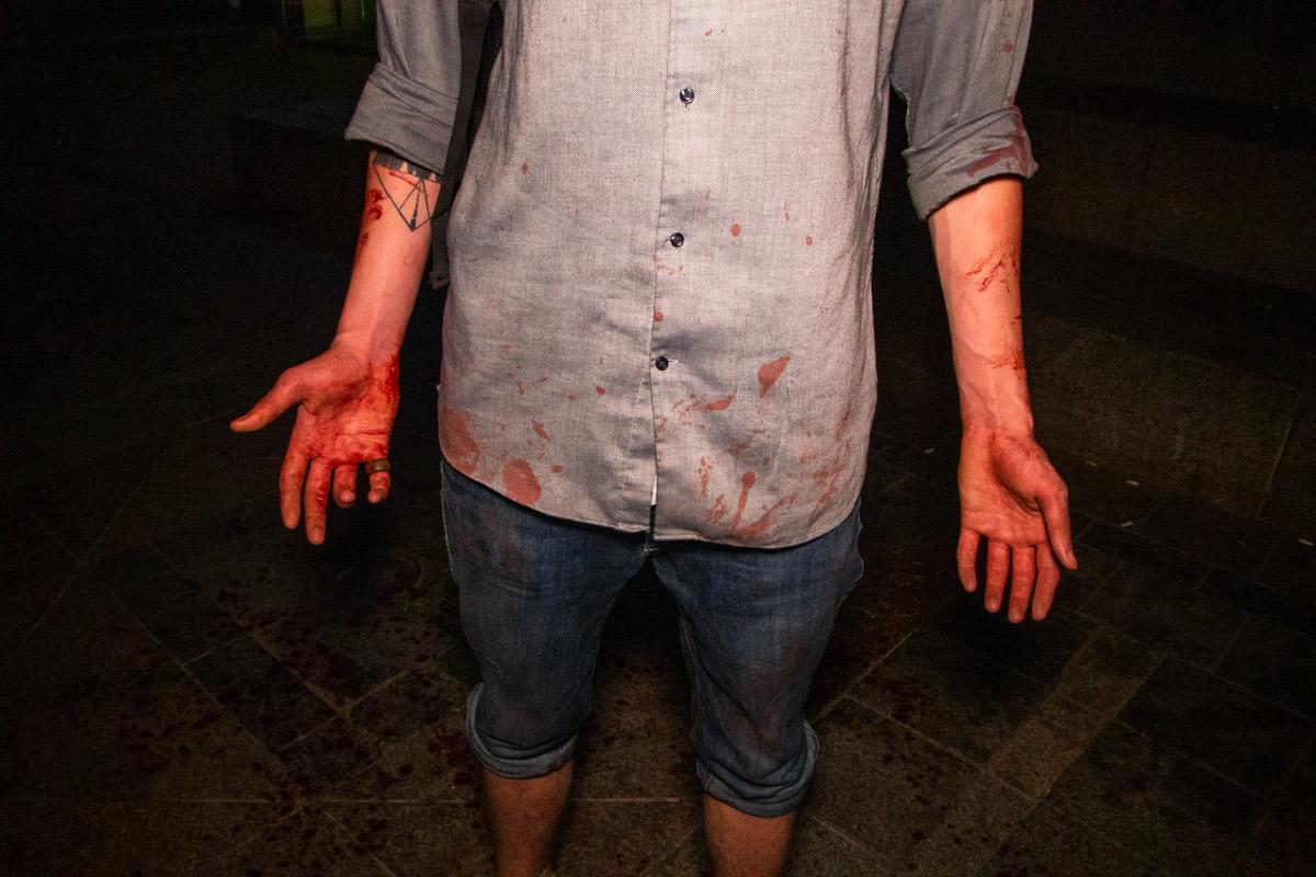 Товарищ пострадавшего тоже был весь в крови