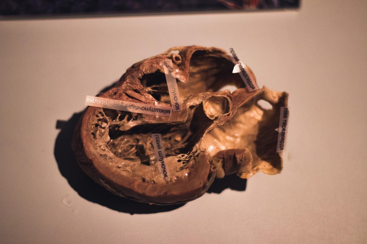 А так выглядит одна из четырех камер сердца человека