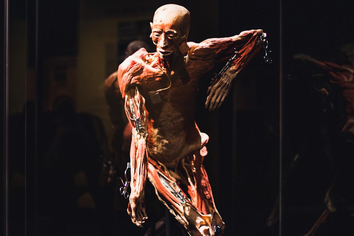 Можно увидеть тела и органы, пораженные болезнями