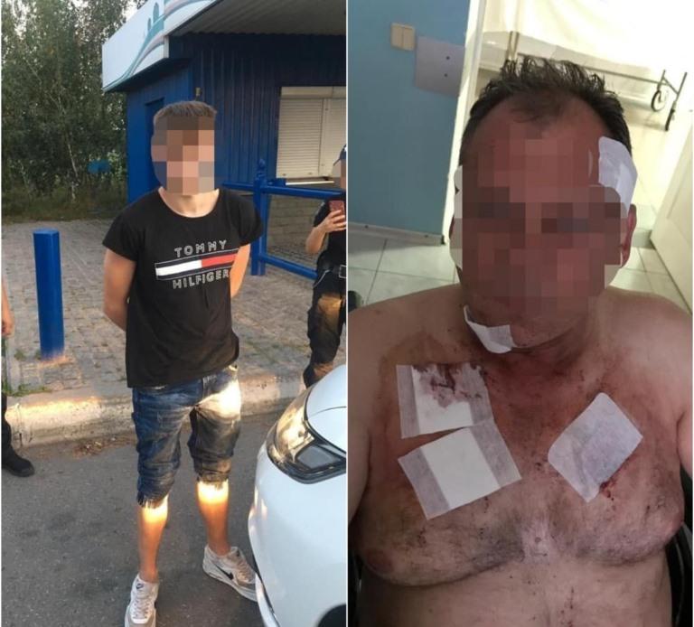 В Киеве 18-летний парень напал на таксиста и изрезал его ножом