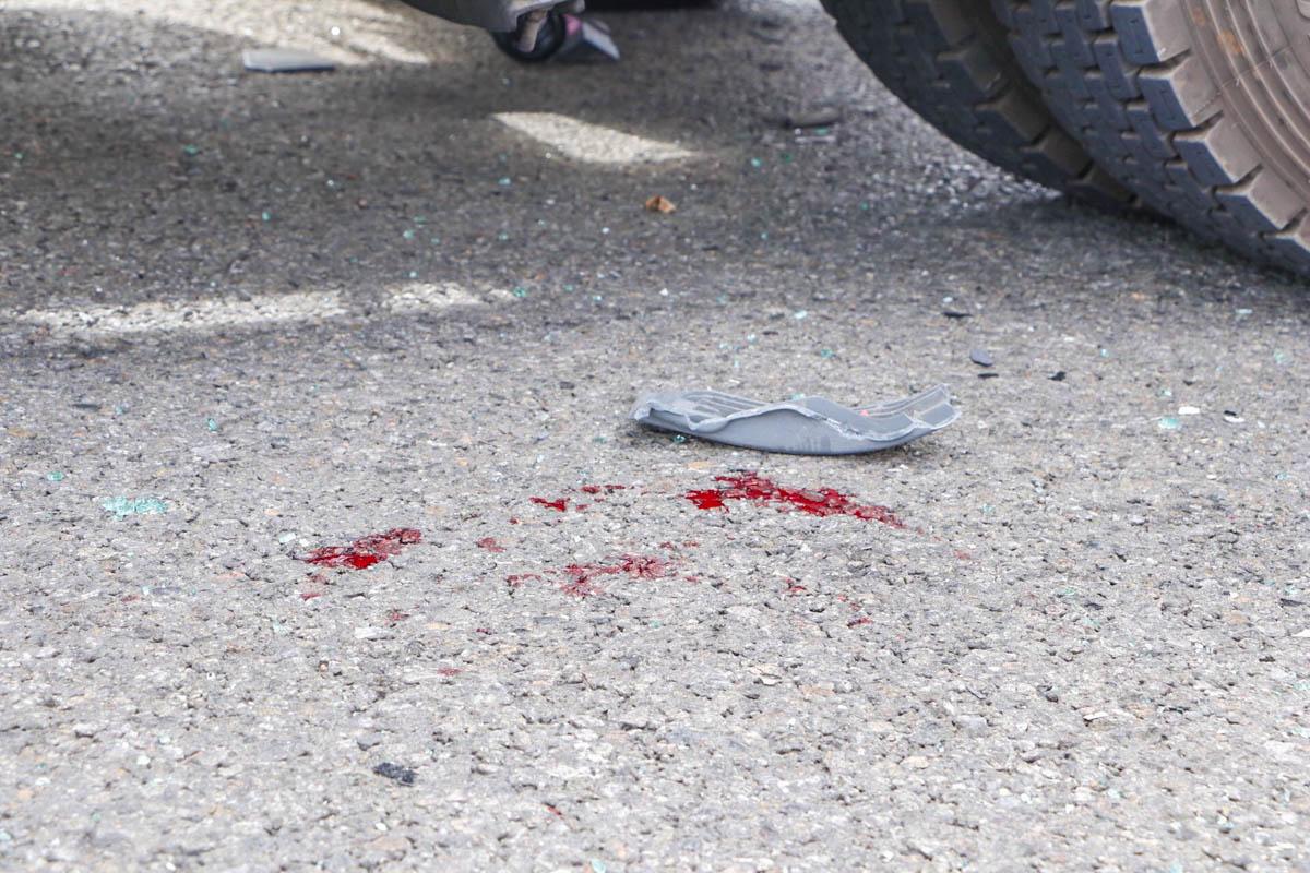 В результате ДТП в больницу госпитализировали водителя Mercedes и Renault